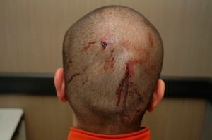The back of George Zimmerman's head