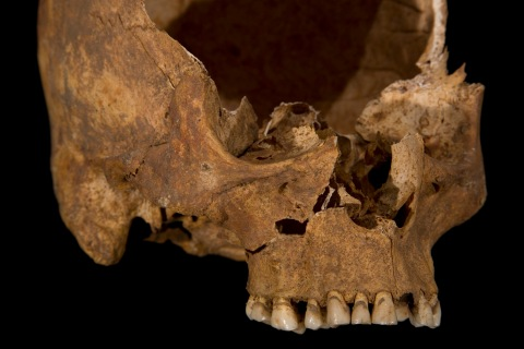 The front of Richard III's skull is seen in this photograph provided by the University of Leicester and received in London