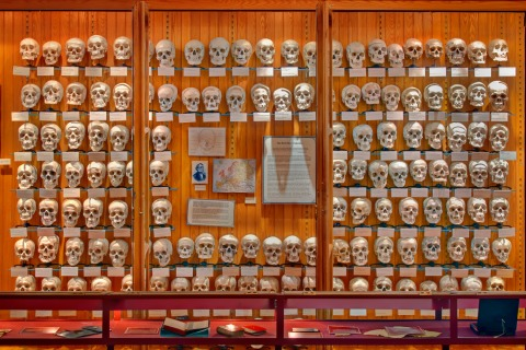 hyrtl-skulls-mutter-museum